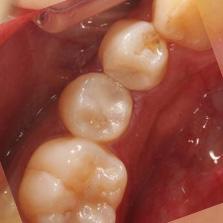 当院では可能なかぎり歯を削らず、このように白く治療します
